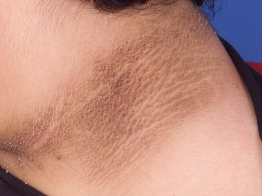 decoloración de la piel en diabetes
